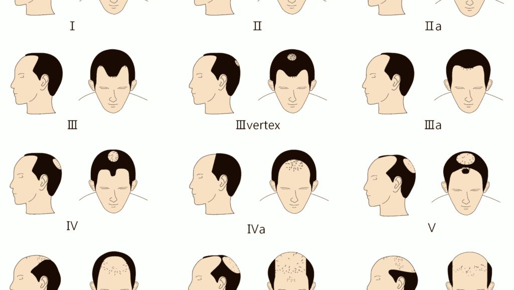 male hair loss norwood scale