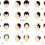 Do I Need More Than One Hair Transplant & How Many Are Needed?