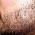 The Rise of Beard Hair Transplants