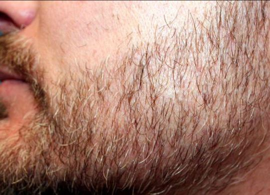 body and beard hair transplant