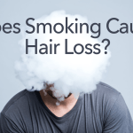Question: Is smoking a cause of hair loss and damage a hair transplant?