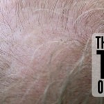 How Many Types of Hair Loss?