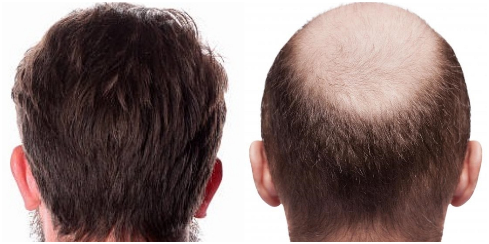 does fue hair transplant