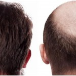 Does FUE hair transplant last forever?