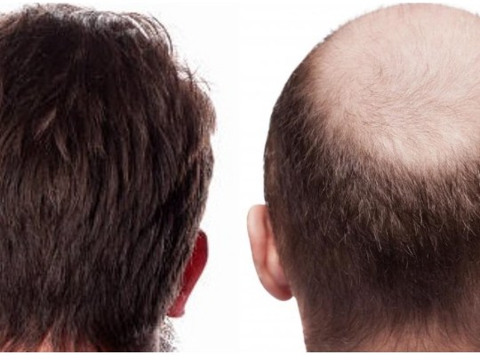 hair transplant donor area Hair Characteristics