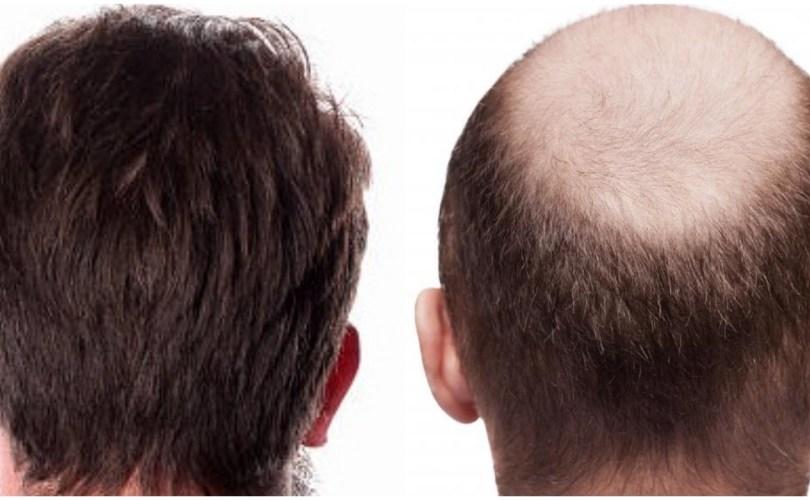 hair transplant donor area Hair Characteristics