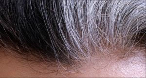 Natural Hair Transplant hairline