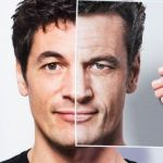 Which Hair Loss Conditions Can Be Treated By A Hair Transplant
