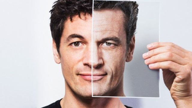 different-hair-loss-conditions