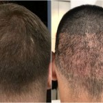 A Scarless Hair Transplant Technique