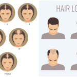 What's your hair loss stage and what's the plan?