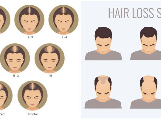 male-female-hair-loss-stages