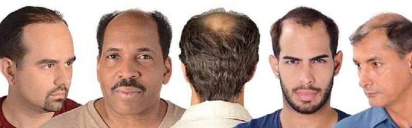 mens-hair-loss