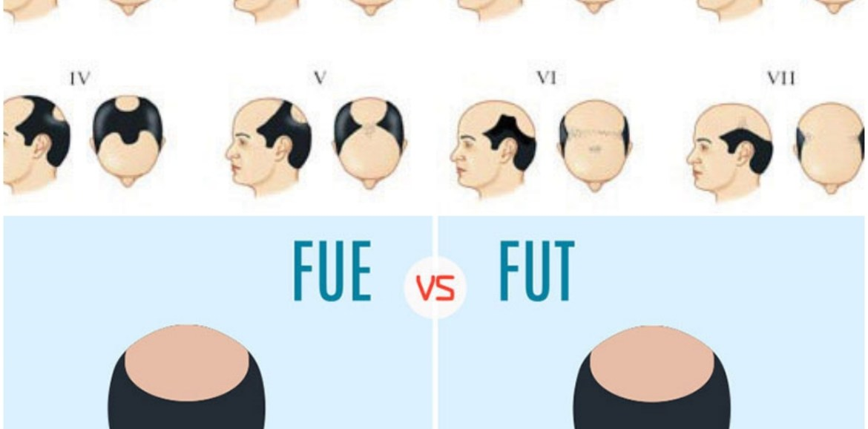 fut-fue-hair-transplant