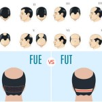 What´s The Big Difference Between FUT and FUE Hair Transplant Techniques?