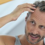 Big Decision, When To Have A Hair Transplant?