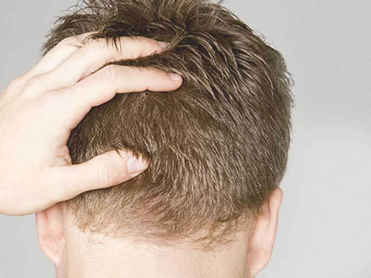 fue-hair-transplant-donor-zone