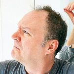 How to treat advanced hair loss with a hair transplant