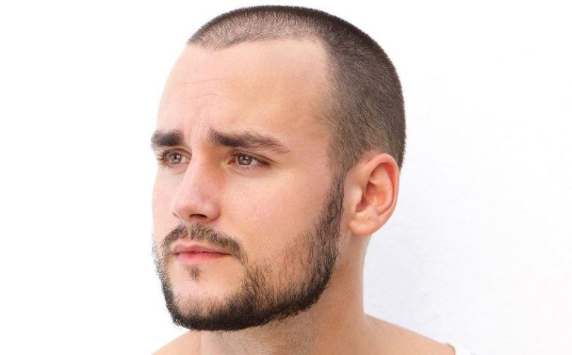 How Long To Go Bald -Natural Maturing Male Hairline