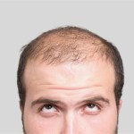 Can I choose my hairline for a hair transplant?