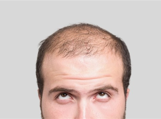 Choosing your hairline with a hair transplant