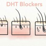 Natural DHT blockers and foods