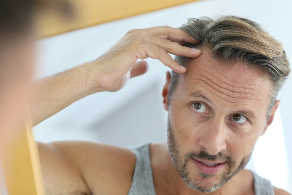 Hair restorations goals and expectations