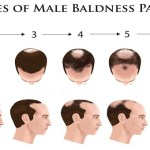 Best Hair Loss Stage For A Hair Transplant