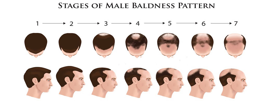 Male Hair Loss Stages - Norwood Scale