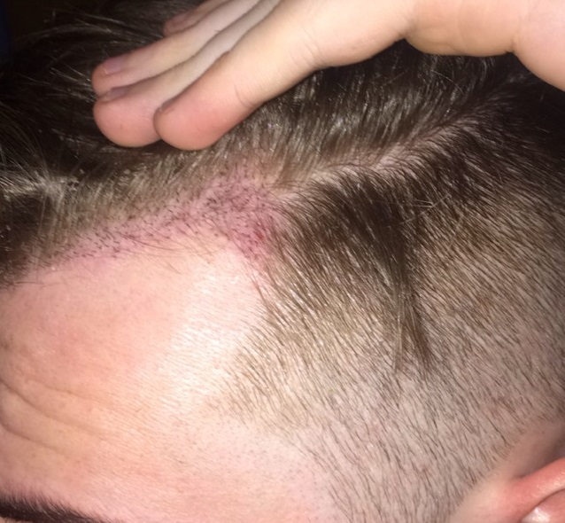 7 Days Post-Op Healing 1200 FUE
