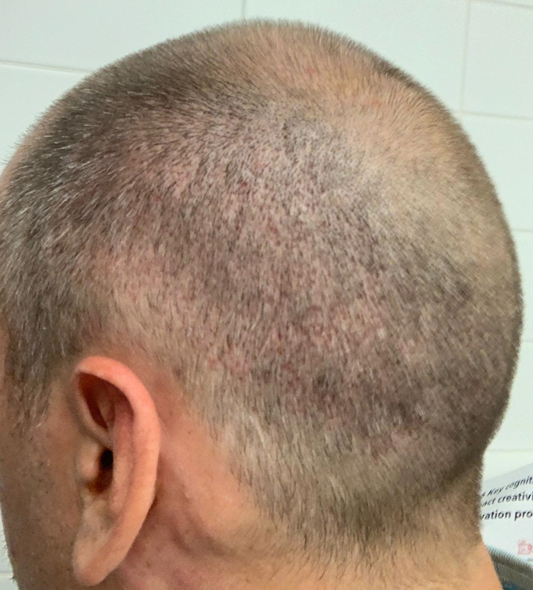 5 Day Post FUE Donor Healing