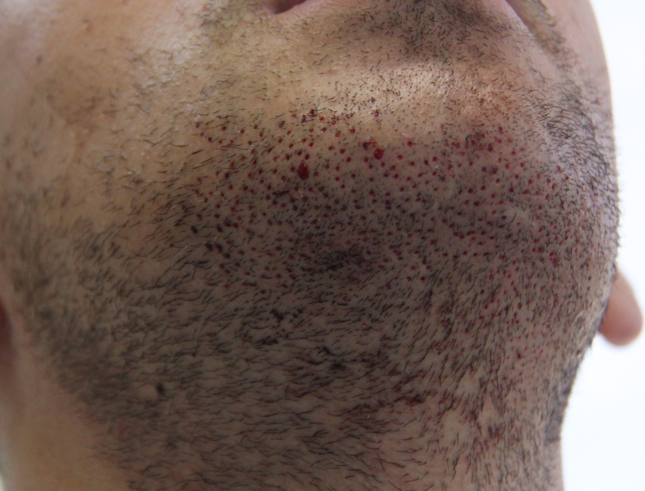 FUE technique beard hair extraction