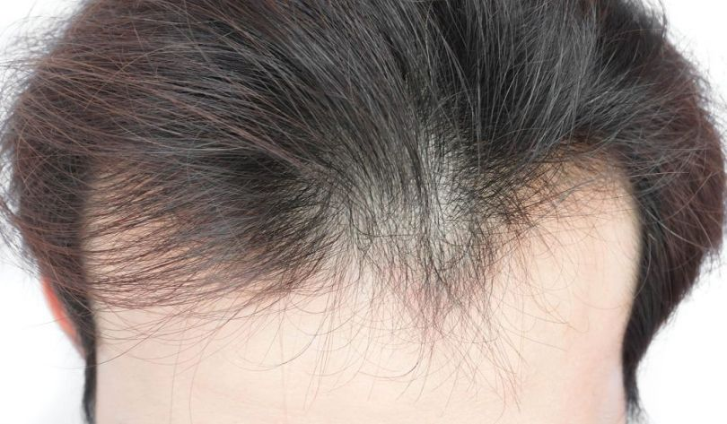 Poor diets leads to poor hair quality