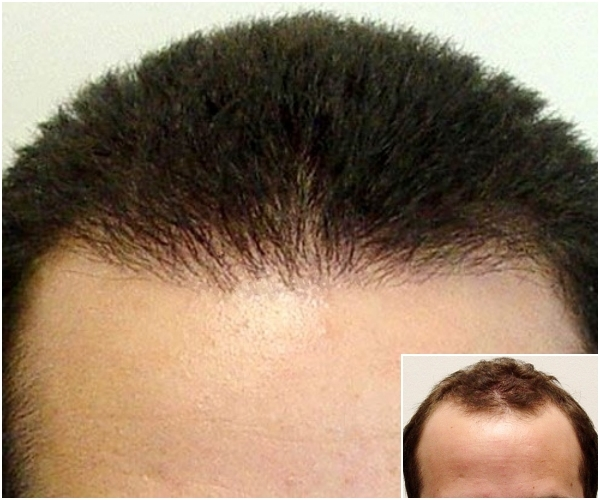 Hairline hair transplant reconstruction
