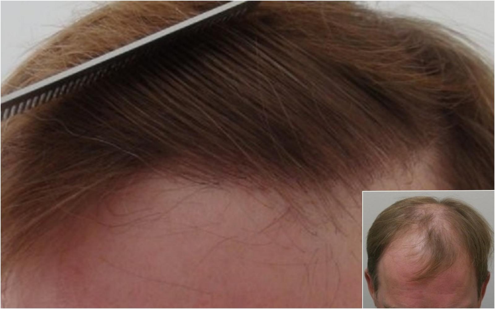 Hair transplant hairline brushed back