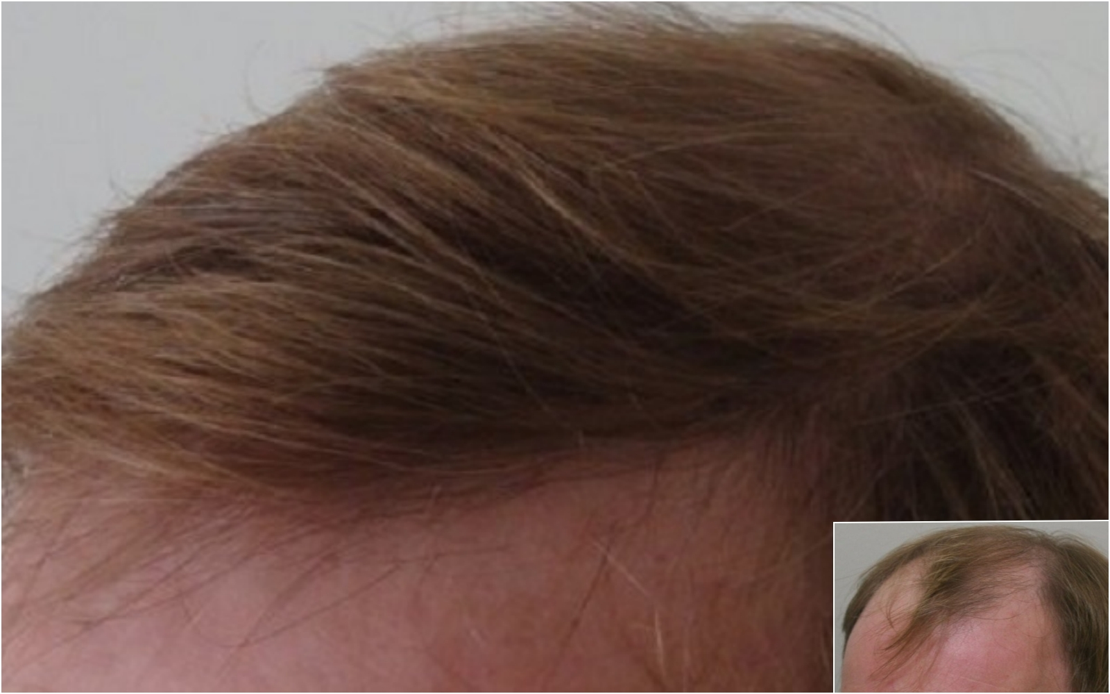 Hair transplant new hairline and frontal hair coverage