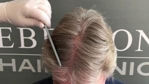 Netherlands Hair Clinic Eberson Hair Clinc