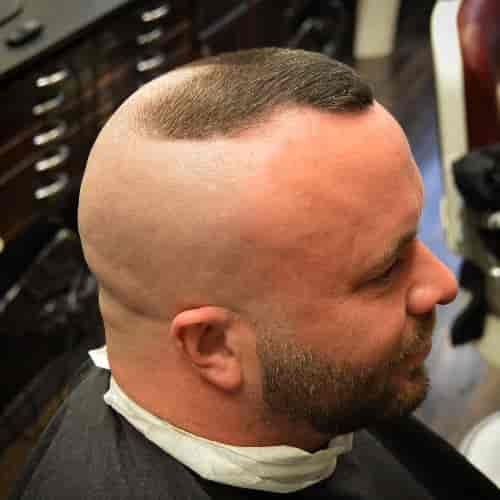 HIGH AND TIGHT FOR MEN WITH PARTIAL HAIR LOSS