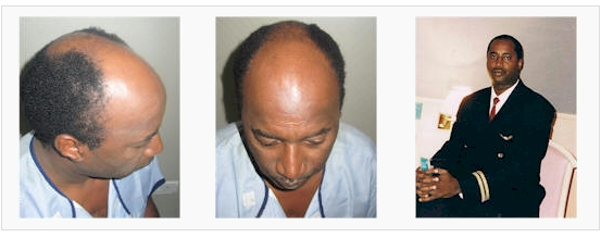 African hair transplant in Chandigarh India with Dr. Bhatti