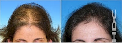 hdc women hair transplant clinic europe