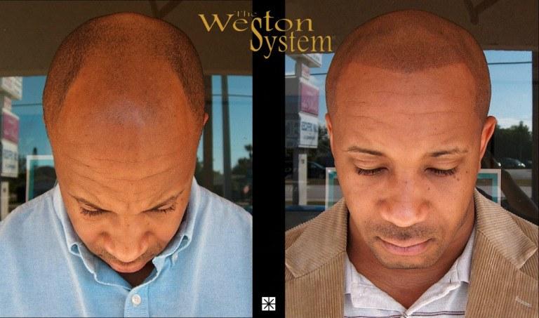 Scalp Micropigmentation African American Hair