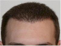 FUE Norwood 4 hair transplant Belgium