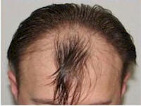 Belgium 1867 FUE grafts hair restoration