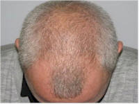 Belgium Norwood 6 hair restoration