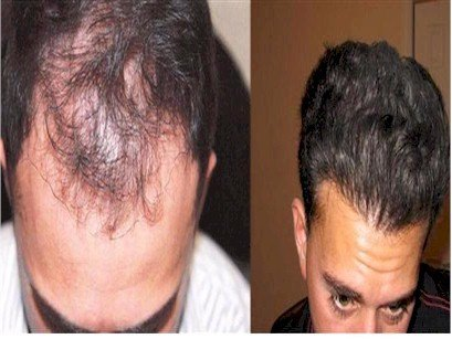 Alvi Armani hair Clinic Results