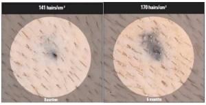 hairmax trial results photos