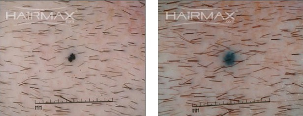 hairmax clinical trial results