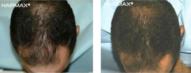 hairmax-men-result-