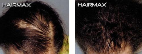 hairmax-women-result