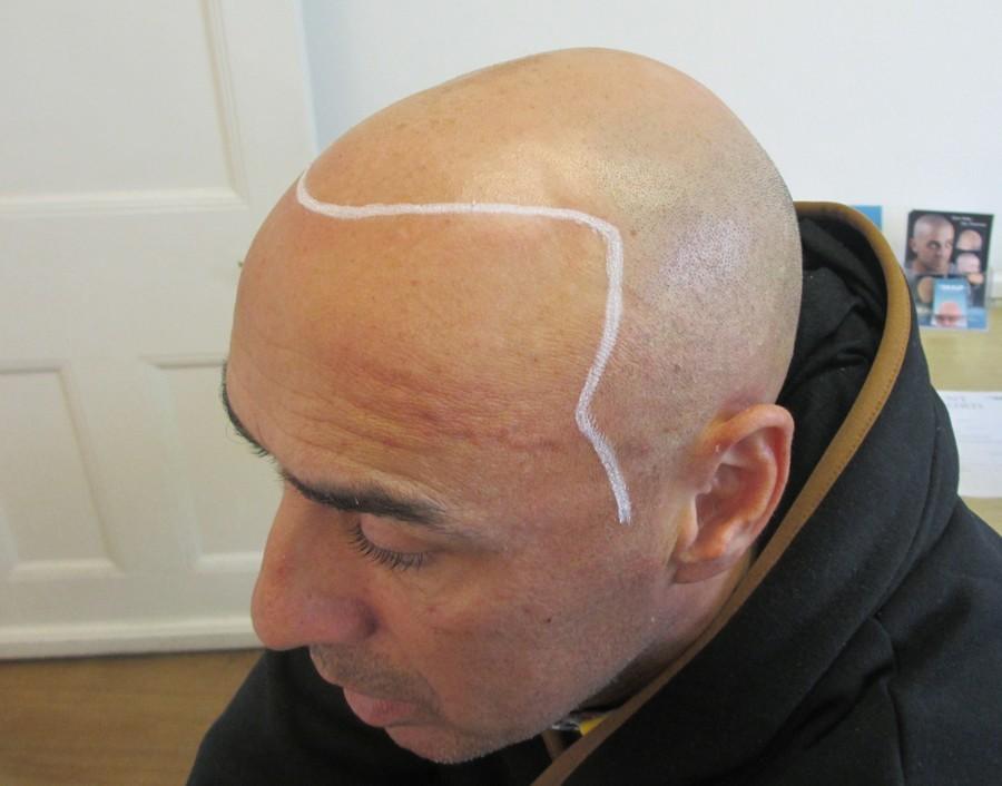 skalp-hair-pigmentation london, new york